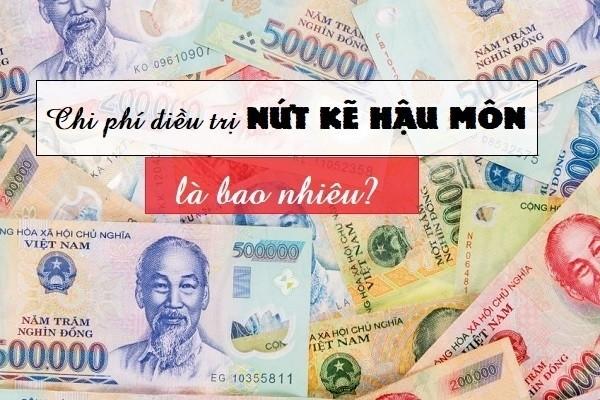 Chi phí chữa nứt kẽ hậu môn ở Đà Nẵng hiện nay