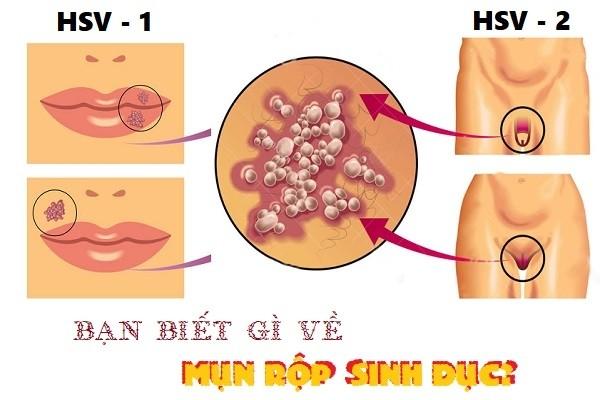 Chi phí điều trị mụn rộp sinh dục ở Biên Hòa hiện nay là bao nhiêu?
