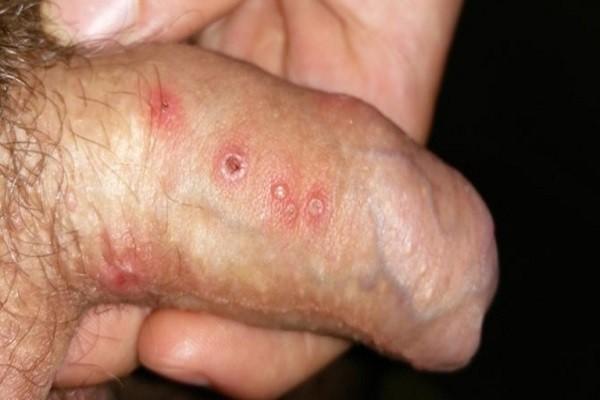 Bệnh mụn rộp sinh dục