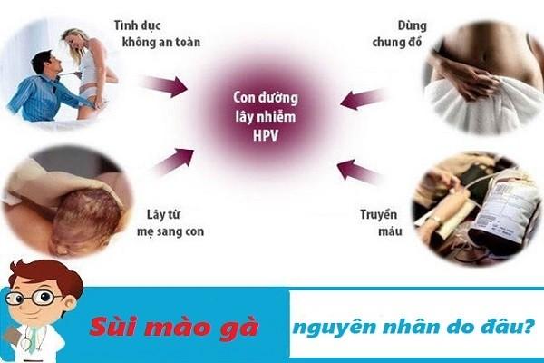 Tìm hiểu những nguyên nhân gây bệnh sùi mào gà