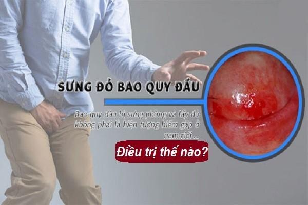 điều trị bao quy đầu sưng đỏ