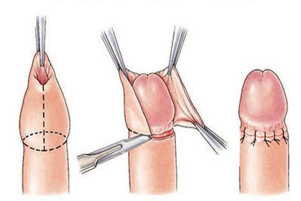 Biện pháp phẫu thuật cắt bao quy đầu