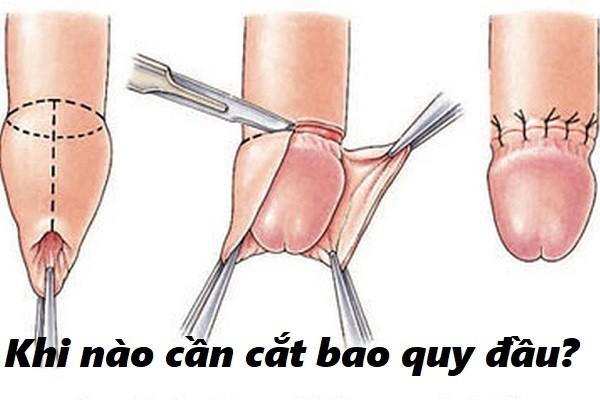 Bao nhiêu tuổi cần phẫu thuật cắt bao quy đầu?