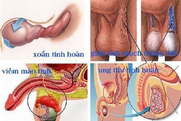 Đau tinh tinh nhưng không sưng là dấu hiệu của bệnh lý nào?