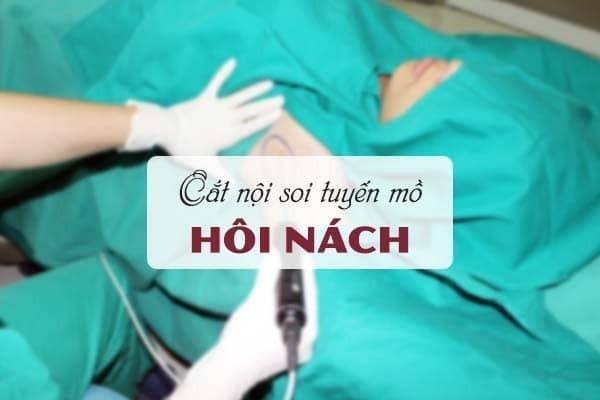 Phẫu thuật cắt nội soi tuyến mồ hôi nách là gì?