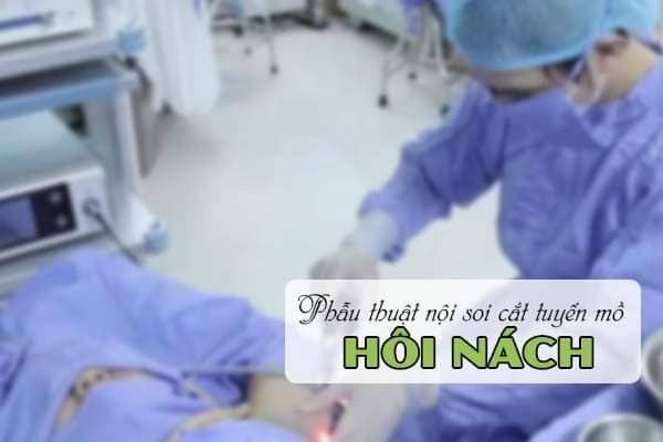 Phẫu thuật cắt tuyến mồ hôi nách nội soi tại Hữu Nghị