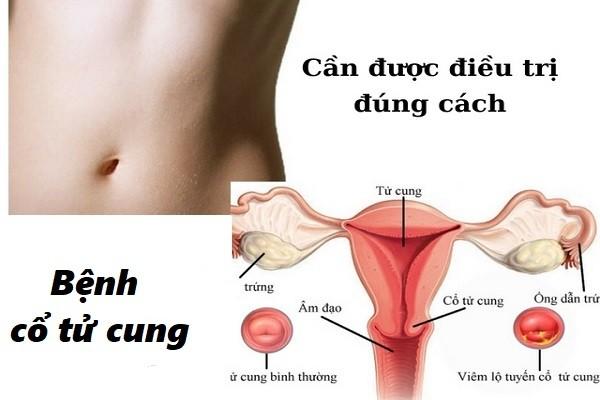 Biện pháp trị viêm cổ tử cung