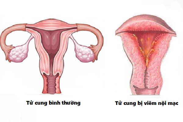 Nguy cơ mắc viêm nội mạc tử cung