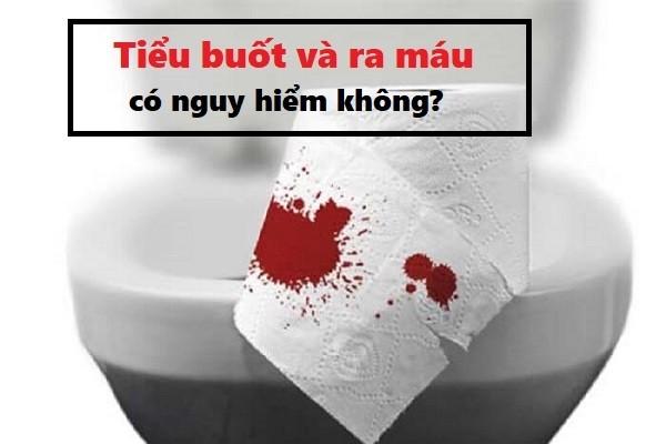 Đi tiểu buốt và ra máu ở phụ nữ có nguy hiểm không?