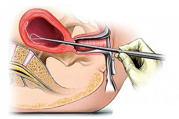 Viêm nội mạc tử cung là do đâu?