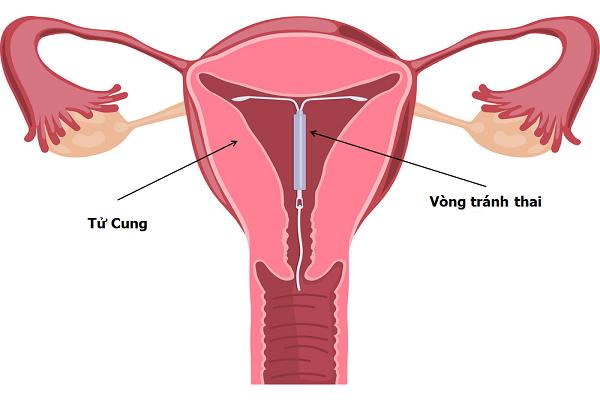 Vòng tránh thai vẫn tác động kể cả sau khi ngừng sử dụng?