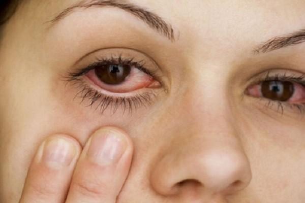 Các bệnh bệnh về mắt