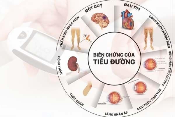 Hàng loạt biến chứng nguy hiểm từ bệnh tiểu đường tuýp 2