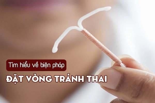Hiểu đúng về biện pháp đặt vòng tránh thai