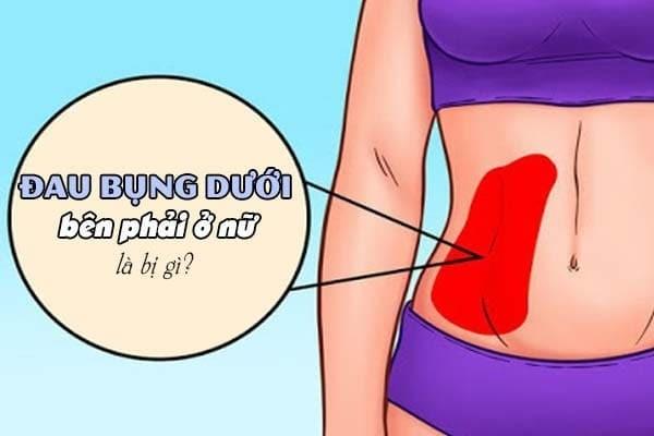 Đau bụng dưới bên phải ở nữ là bị gì?