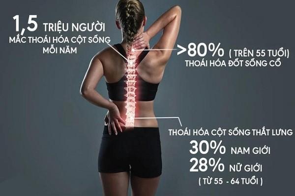 Rối loạn, thoái hóa cơ, xương và khớp