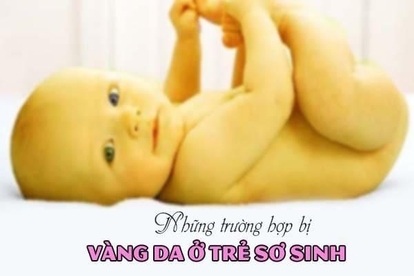 Những trường hợp nào ở trẻ sơ sinh dễ mắc bệnh vàng da